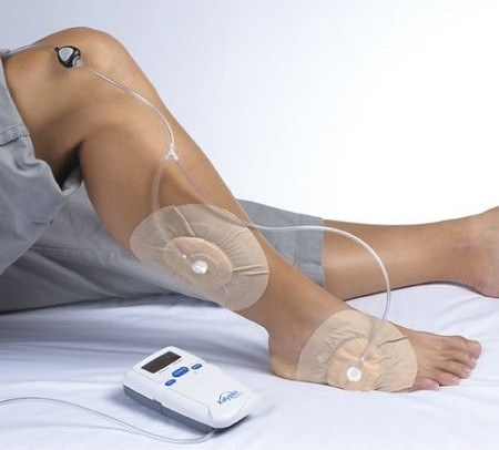 Negative Pressure Wound Therapy Devices | Vacuum or VAC Wound Therapy for Pressure Ulcers, Venous Ulcers and Diabetic Ulcers