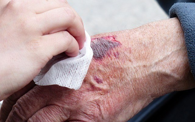 How To Speed Up Wound Healing